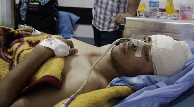 A man receives treatment at a hospital after being injured by a suicide bomb attack in Baghdad, Iraq (AP)