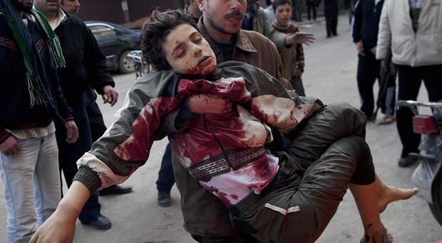 A young boy injured in fighting between rebels and government troops in Idlib, northern Syria (AP)