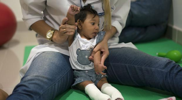 Brazilian researchers have pointed to a suspected link between pregnant women's infection with the virus and a rare birth defect in babies (AP)
