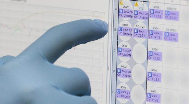 A medical researcher uses a monitor that shows the results of blood tests for various diseases, including Zika, at the Gorgas Memorial laboratory in Panama City (AP)