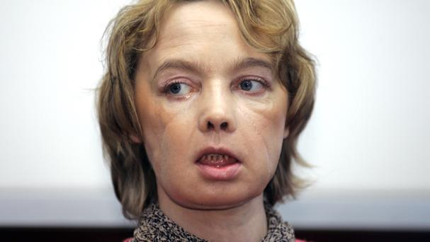 Isabelle Dinoire, the woman who received the world's first partial face transplant, has died (AP)
