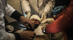 A boy who was wounded in the eye by Islamic State militants is treated by doctors at a clinic in Mosul, Iraq (AP)