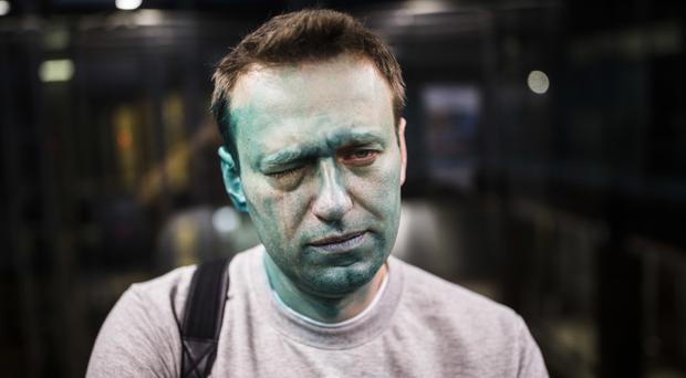 Russian opposition leader Alexei Navalny was attacked outside a conference venue in Moscow (Evgeny Feldman/Pool Photo via AP)