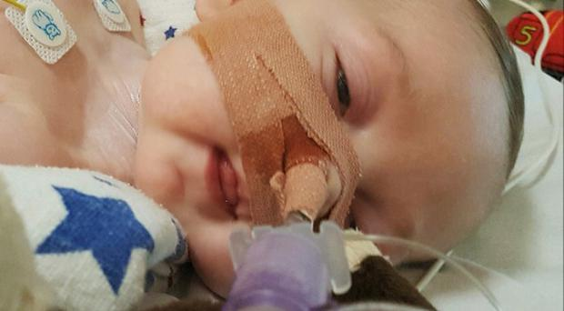 Charlie Gard's parents have ended a legal fight over treatment for the terminally-ill baby