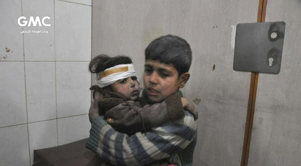 Two Syrian children wounded during air strikes and shelling (Ghouta Media Center via AP)