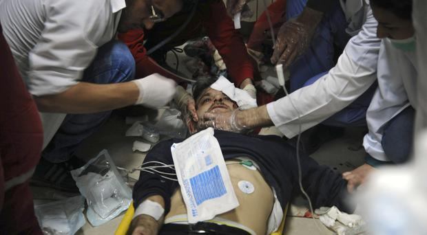 A man receiving treatment at a hospital in Damascus (SANA via AP)