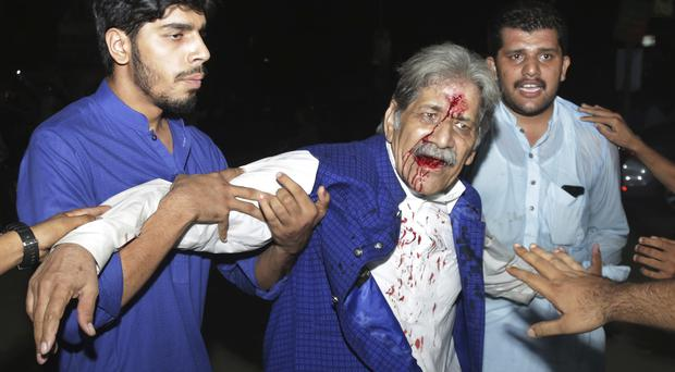 An injured supporter of former prime minister Nawaz Sharif after a clash with police (K.M. Chaudary/AP)