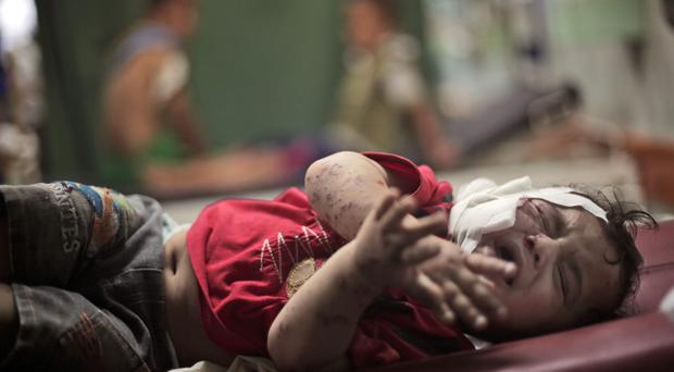 A Palestinian child cries while receiving treatment for injuries caused by an Israeli strike at a UN school in Gaza