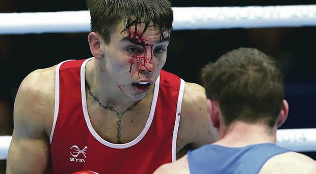 Cutting it: Michael Conlan with his wounds from battle