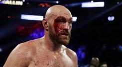 Tyson Fury was cut in the third round before going on to victory (Isaac Brekken/AP)