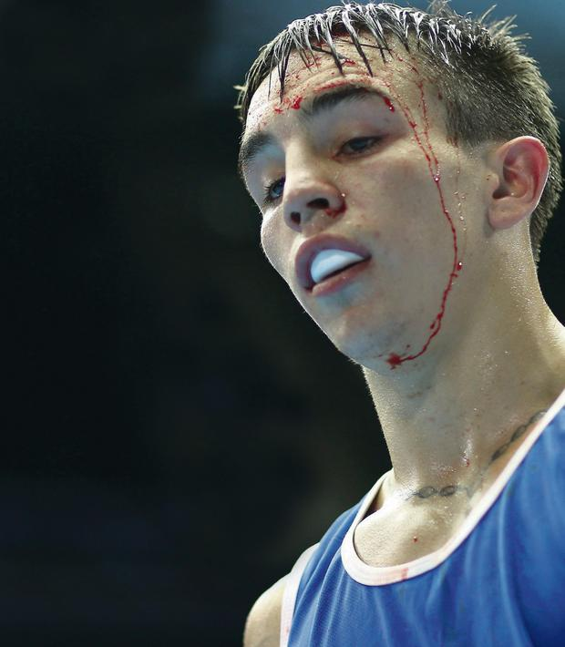 Bloodied but unbowed: Michael Conlan after yesterday's bout at Glasgow's SECC