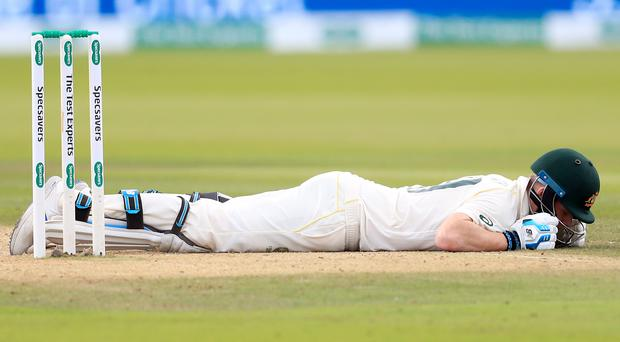 Steve Smith retired hurt after being struck by a 92mph delivery from Jofra Archer (Mike Egerton/PA)