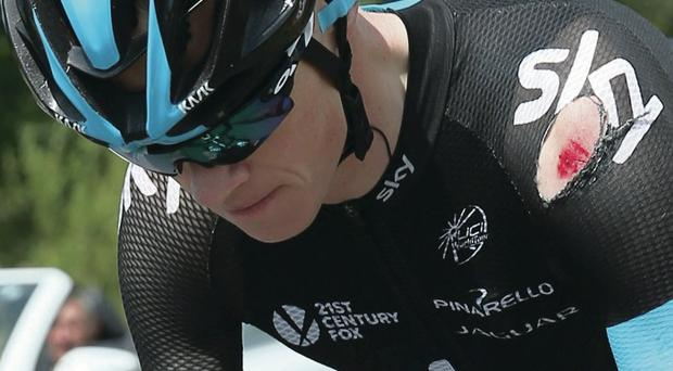 Worse for wear: Chris Froome shows signs of his early crash