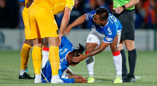 Horror blow: Joe Aribo after being caught by an elbow