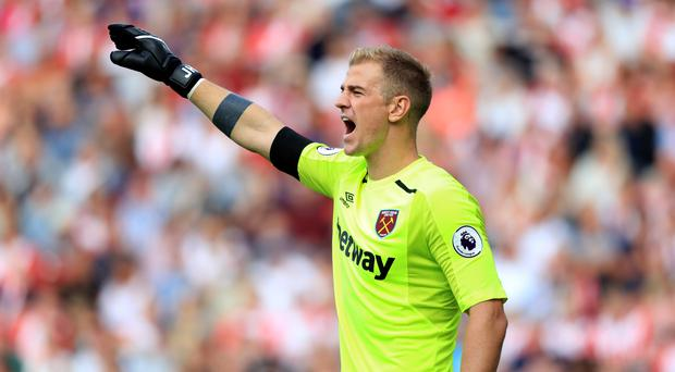 Joe Hart is reported to have been left out of England's World Cup squad