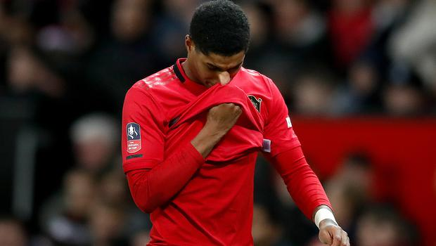 Marcus Rashford is facing a race against time to be fit for Euro 2020 (Martin Rickett/PA)