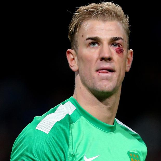 Joe Hart was in good form against Crystal Palace