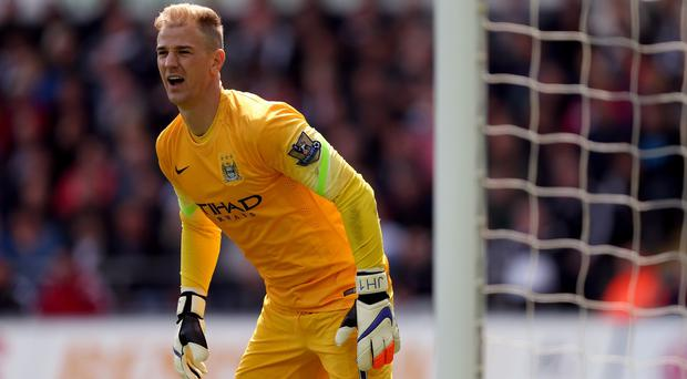Manchester City goalkeeper Joe Hart must keep improving, according to boss Manuel Pellegrini