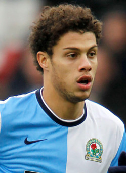 Rudy Gestede adds an attacking option for Villa boss Tim Sherwood