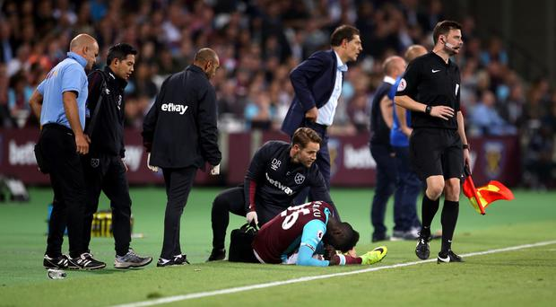 Arthur Masuaku, centre, was injured during West Ham's EFL Cup win over Accrington