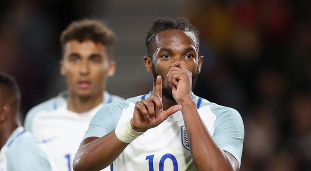 Kasey Palmer suffered a recurrence of a hamstring injury while on England Under-21 duty