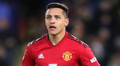 Alexis Sanchez has been diagnosed with a dislocated ankle and tendon damage (Adam Davy/PA).