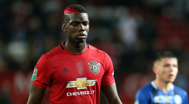 Paul Pogba is a doubt for Manchester United due to an ankle injury (Richard Sellers/PA)