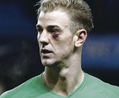Eye sore: Joe Hart was involved in a collision during Man City's last outing on Saturday against Crystal Palace
