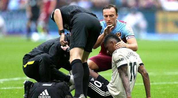 More agony: Marcus Rashford shows his pain after picking up an injury in defeat to West Ham