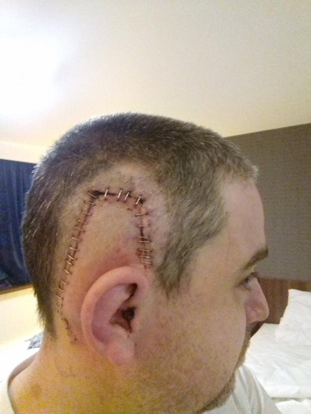 Chris' scar after his operation
