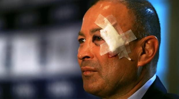 A fall was attributed to Eddie Jones showing up to the Six Nations launch with a wound to his face