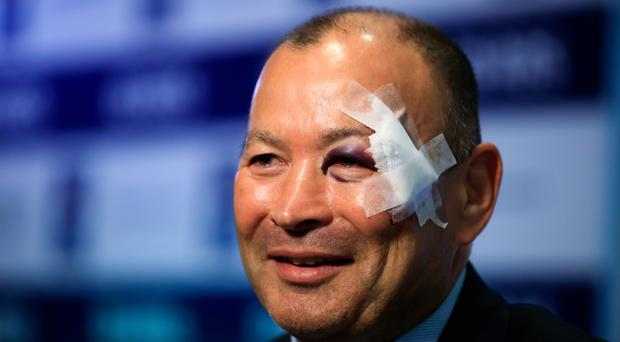 There was no missing the injury sustained by England head coach Eddie Jones