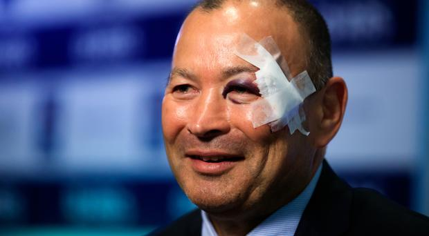 Eddie Jones sported a facial wound at the RBS 6 Nations launch last week