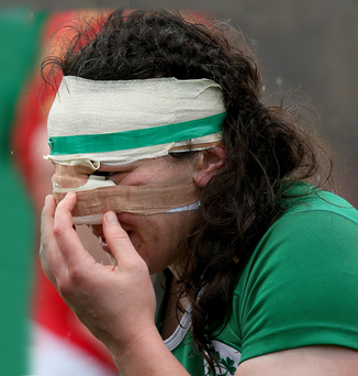 Wounded warrior: Paula Fitzpatrick is bloodied but unbowed as she celebrates after helping Ireland beat Wales at Donnybrook