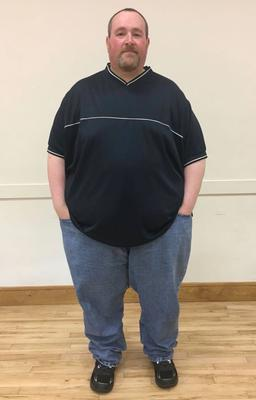 Phil Kayes before weight loss
