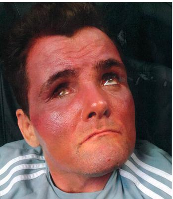 Michael Overend suffered severe sunburn while in the care of Positive Futures staff.