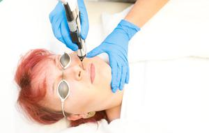 Joni Augustine getting hair removal treatment from Gillian Rossborough at Beyond Skin Clinic Belfast City centre.